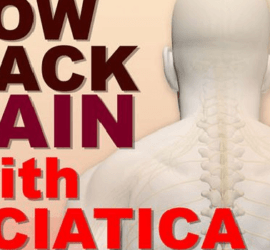 Thumbnail titles how to prevent and treat low back pain